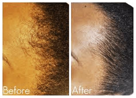 growing black hair  great lengths save  hairline