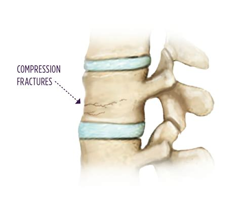 Vertebral Compression Fracture  Summit Orthopedics. Get Pre Approval For Mortgage. Where To Buy Gold In Chicago. Columbia Heating And Cooling. Community Colleges In Ms Preschools Denver Co