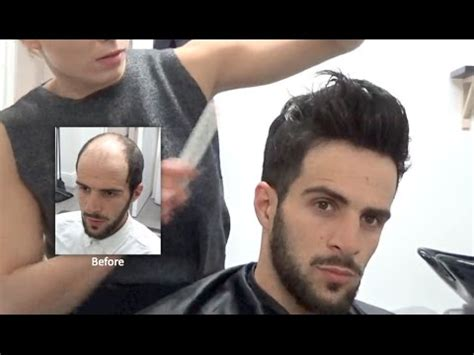 hair replacement fitting video hair loss baldness hair