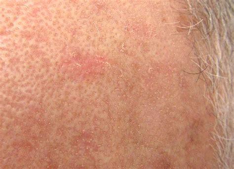 Herpes vs psoriasis