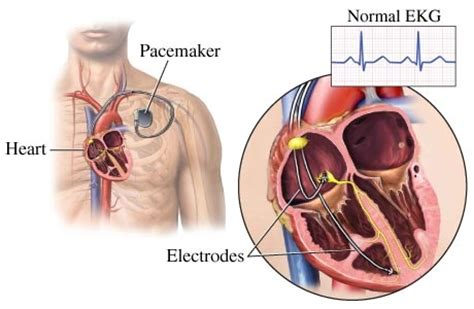 pacemaker chambre electromagnetic radiations and your health
