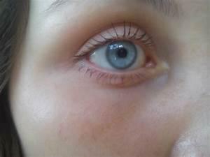 Болят суставы и краснеют глаза