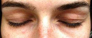 parts of eyelid eyelid eczema information