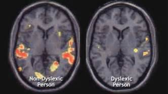 What Does a Dyslexic Brain Look Like