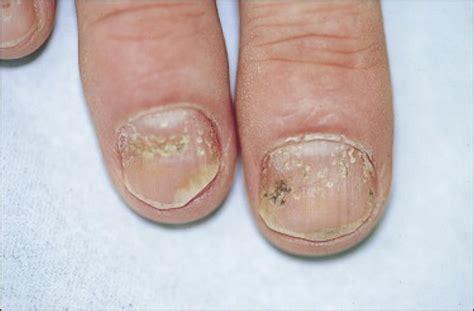 dermite de siege psoriasis du cuir chevelu