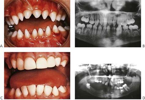 11. Dental Anomalies