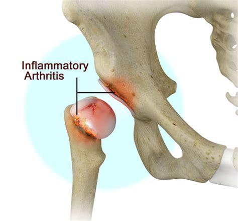 Tulang Gigitan Hip Bone inflammatory arthritis treatment kew hip joint east