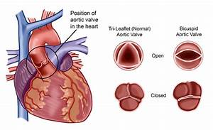 What Prevents The Backflow Of Blood From The Aorta To The