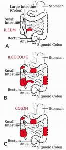 Crohn U0026 39 S Disease