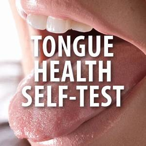 The gallery for --> Healthy Vs Unhealthy Tongue