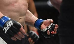 After grisly injury, UFC's Josh Emmett briefly thought his ...