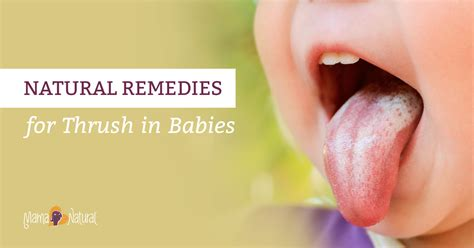 What Causes Thrush In Babies Mouth Wallpaper Sportstle