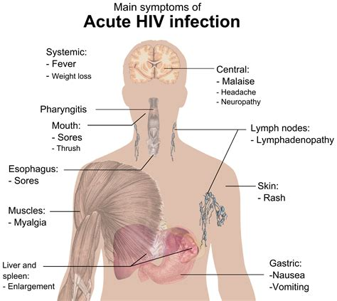 Signs And Symptoms Of Hivaids Wikiwand