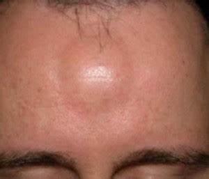 vetbult op hoofd