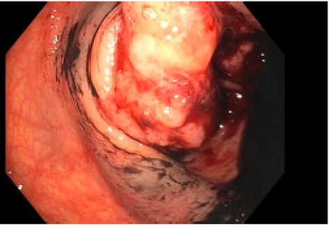 management   malignant colorectal polypis formal