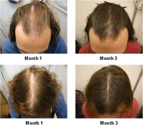 emu oil for hair loss after 3 kerastase densifique