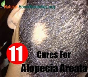 11 Natural Cures For Alopecia Areata Ways To Treat