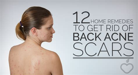 12 Home Remedies To Get Rid Of Back Acne Scars