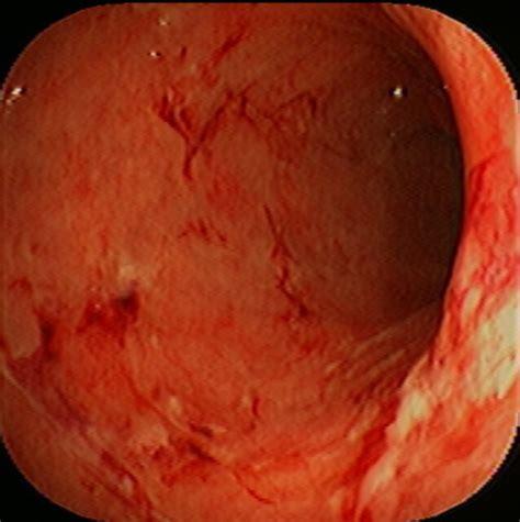 Garden Of Ulcerative Colitis by Ulcerative Colitis Flickr Photo