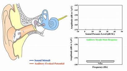 Hearing Eeg Ear Threshold Normal Objective Based