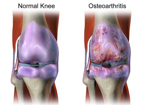 Artróza kolenního kloubu 3 stupně