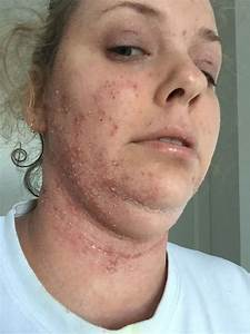 Woman Left Shedding Like Snake After Rare Steroid Skin