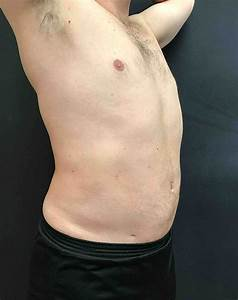 Vaser Lipo for Male Belly and Love Handles Laser ...