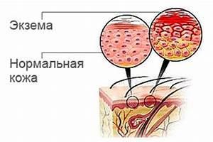 Ванны с дегтем от псориаза