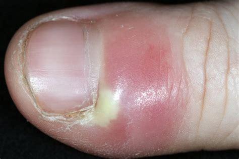 nail abnormalities nhsuk