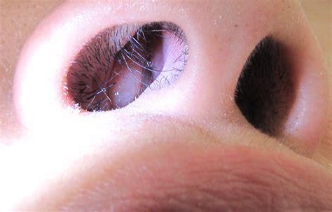 Nasal Polyp Wikipedia