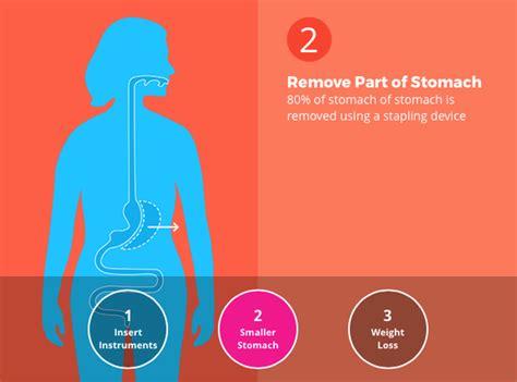 gastric sleeve  ways   affect  bariatric