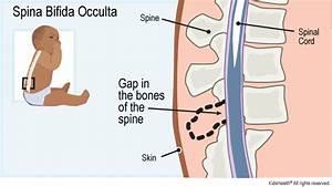 Spina Bifida Occulta  For Parents