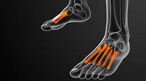 Runners And Athlete U2019s Guide To Foot Stress Fractures