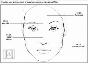 Filler Complications  4 Ways To Avoid Blindness In