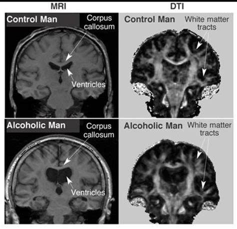 mri images  alcoholic brain mri scan images mri mri