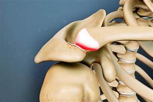 Лечение остеохондроза физиотерапевтические процедуры