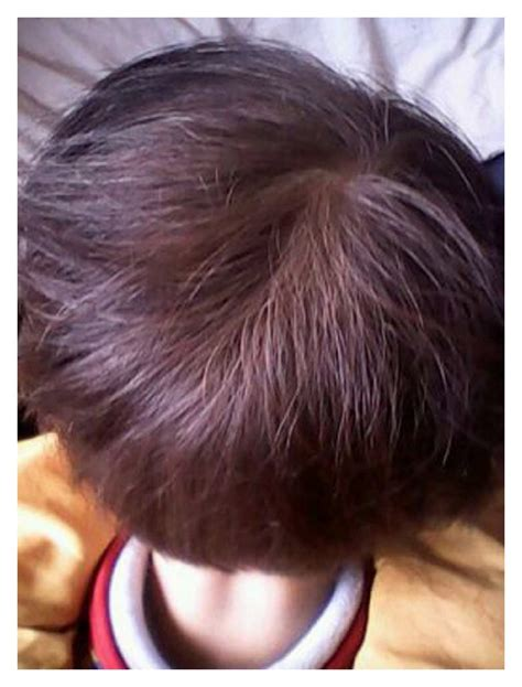 Hair Is A Mutation by A Novel Splicing Mutation Of Kit Results In Piebaldism And