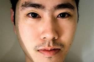 Eyebrow Piercing Taken Out