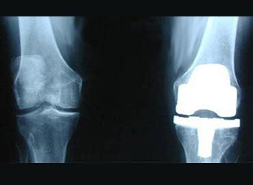 enfermeria de quirofano artroplastia total de rodilla