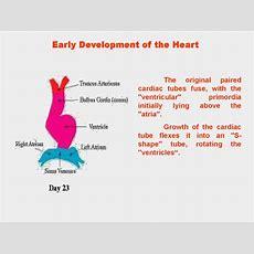 Development Of The Heart  презентация онлайн