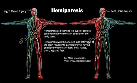 Hemiparesiscausessymptomstreatmentprognosiscomplications. Environments Signs Of Stroke. Standard Signs. Snap Chat Signs Of Stroke. Self Signs. Kabbalah Signs. Diagnostic Signs. Stressed Signs. Kubang Kerian Signs Of Stroke