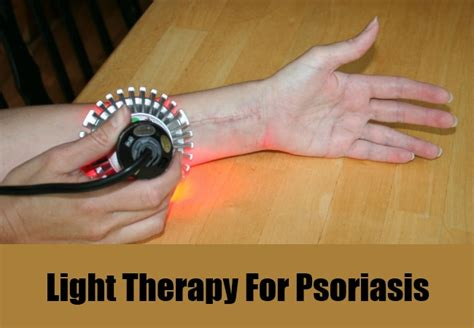 light treatment for psoriasis 11 best treatments for psoriasis how to treat psoriasis