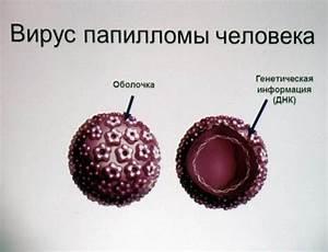 Папилломы под головкой лечение