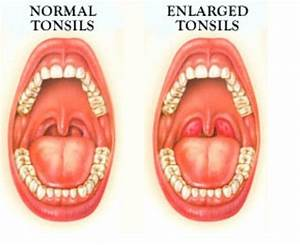 The complex relation between Tonsil stones and being sick ...