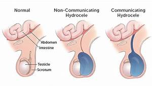 Hydrocele  Of The Testes