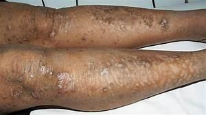 Acquired Ichthyosis   U0627 U0644 U0633 U0645 U0627 U0643  U0627 U0644 U0645 U0643 U062a U0633 U0628