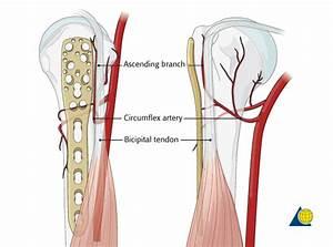 Proximal Humerus - Reduction  U0026 Fixation