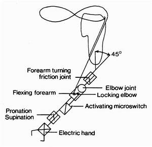 Diagram Of Single Cable Control Hybrid Arm Prosthesis