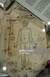 A Medical Diagram Of Marilyn Monroe U0026 39 S Body At The Time Of