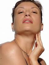 Лечение волосистой части кожи головы при псориазе народными средствами